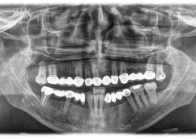 Ortopantomografia / Telerradiografia
