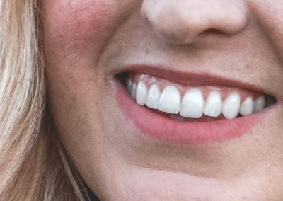 Medicina Dentária Estética